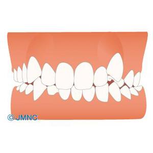 八重歯イメージ