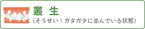 叢生(そうせい:ガタガタに並んでいる状態)