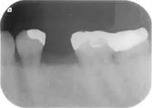 (インプラント治療)抜歯後の状態