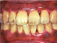 歯周病の原因となる生活習慣病 喫煙