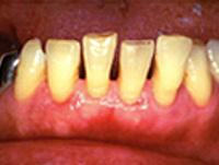 歯周病の原因となる生活習慣病 その他のシルクファクター