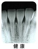 X線写真検査