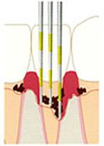 歯の根の形や歯石がついているかの確認
