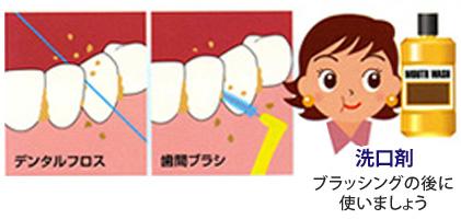 今までの歯ブラシの仕方に問題があるかもしれません。指導を受けて適切な方法や清掃用具を使いましょう。