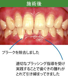 歯周炎治療後
