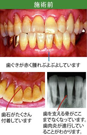 中等度歯周炎治療施術前