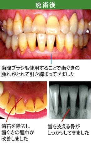 中等度歯周炎治療施術後