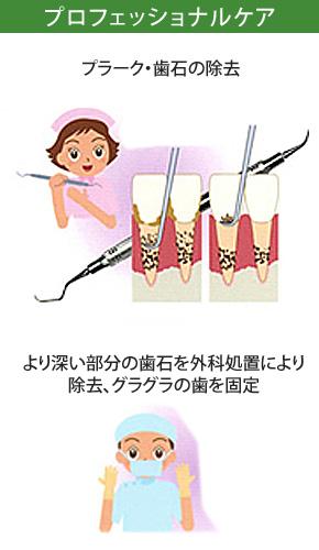 重度歯周炎治療プロフェッショナルケア