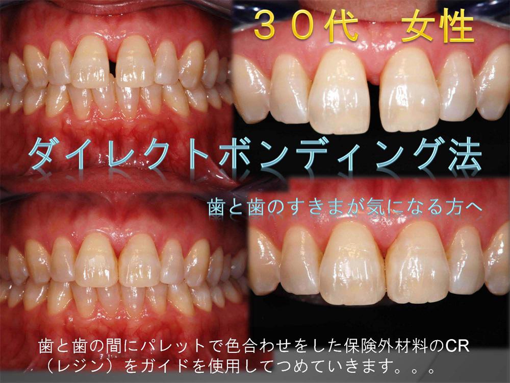 前歯のすき間をどうしよう?➀