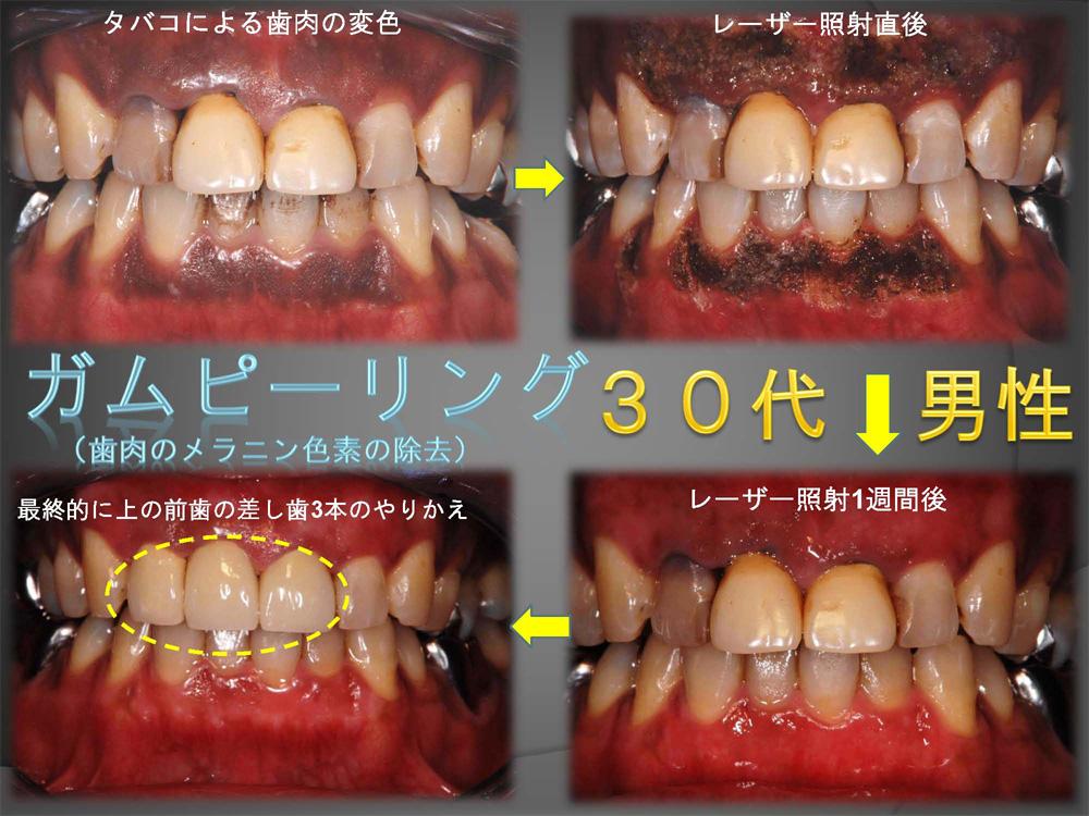歯ぐきの色も何とかなる???