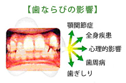 歯並びの影響