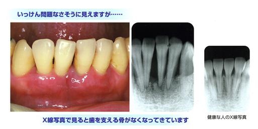 X線で見た歯周病写真