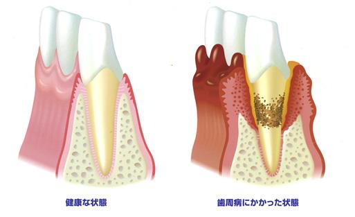 健康な歯と歯周病にかかった状態の歯と歯ぐきの断面図