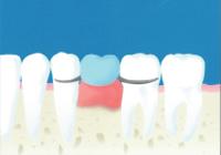 (虫歯治療方法)入れ歯