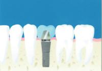 (虫歯治療方法)インプラント