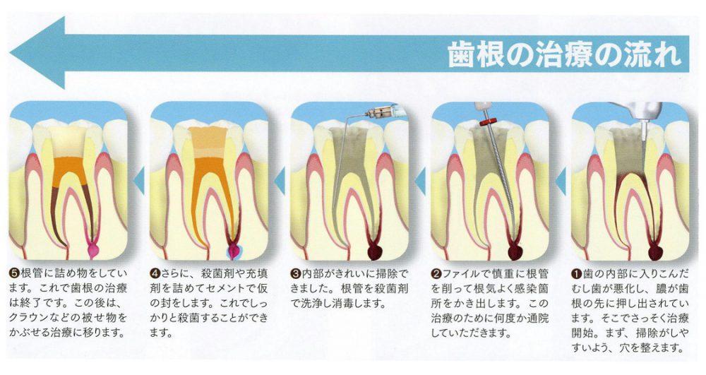 歯根の治療の流れ