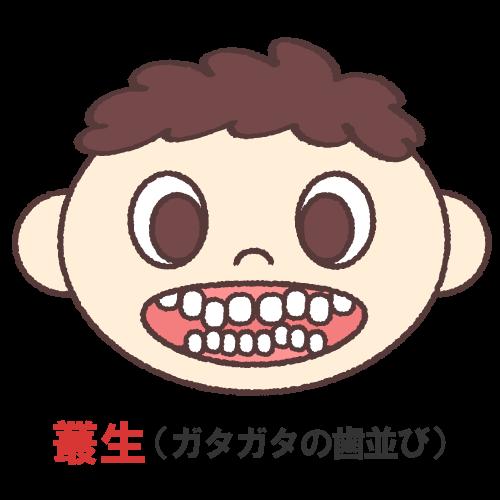 叢生(そうせい)(ガタガタの歯並び)