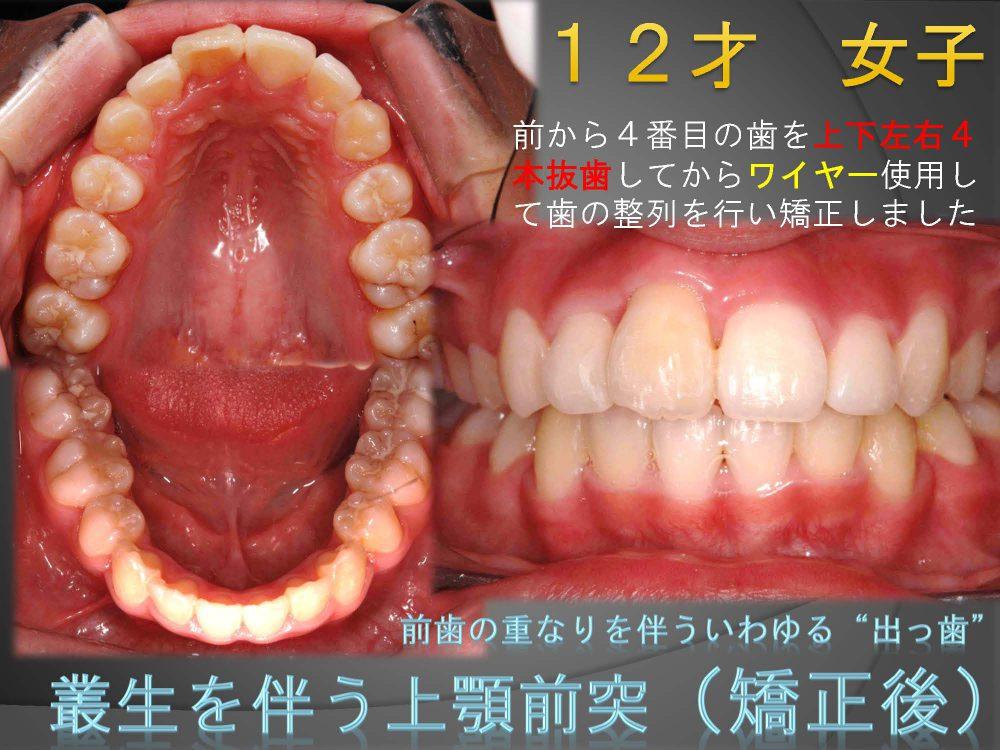 中学生でも矯正治療に抜歯が必要なの?