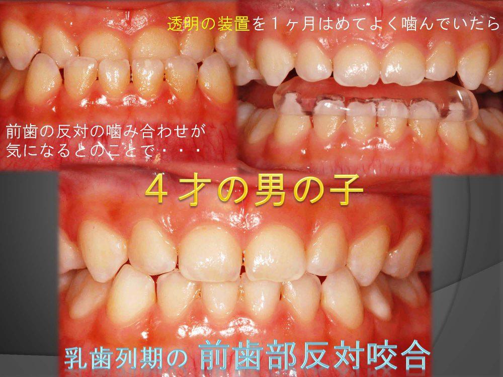 まだ乳歯だけで4才だけど、早く矯正した方がいいの?
