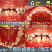 永久歯の前歯が重なって生えてきた!