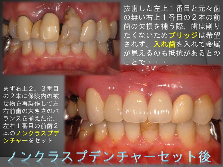 (審美治療症例)ノンクラスプデンチャー(金属のバネを使用しない入れ歯)