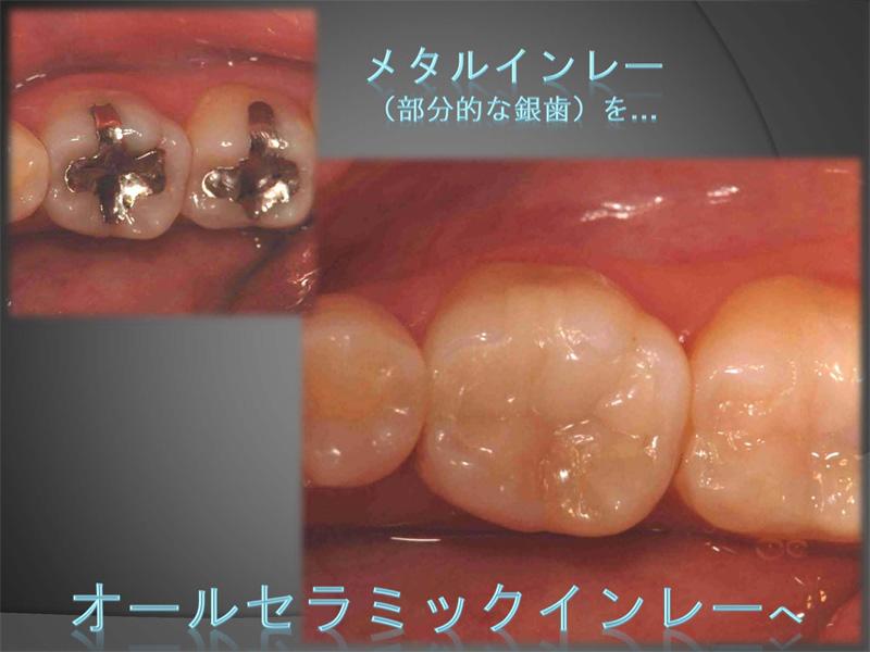 神経が死んでいる歯(失活歯)のホワイトニング