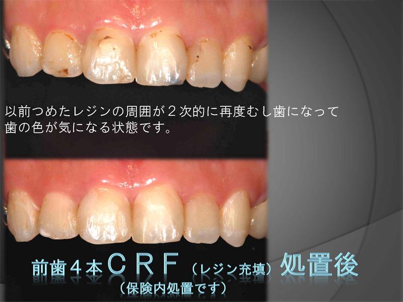 CRF(レジン充填)