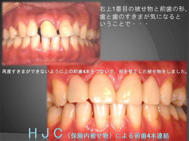 HJC(硬質レジンジャケット冠)