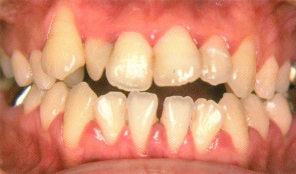 歯周病定期検診1