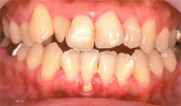 歯周病定期検診3