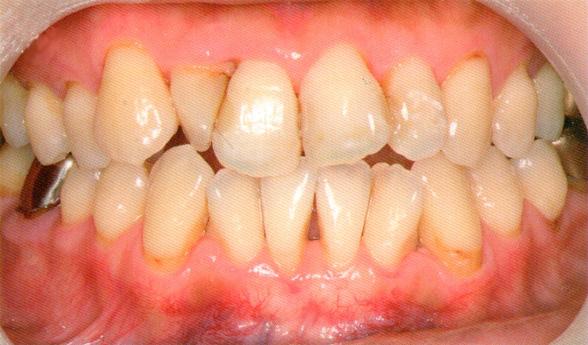 歯周病定期検診5